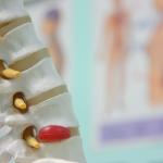 Back Pain Myths: Posture, Core Strength, Bulging Discs
