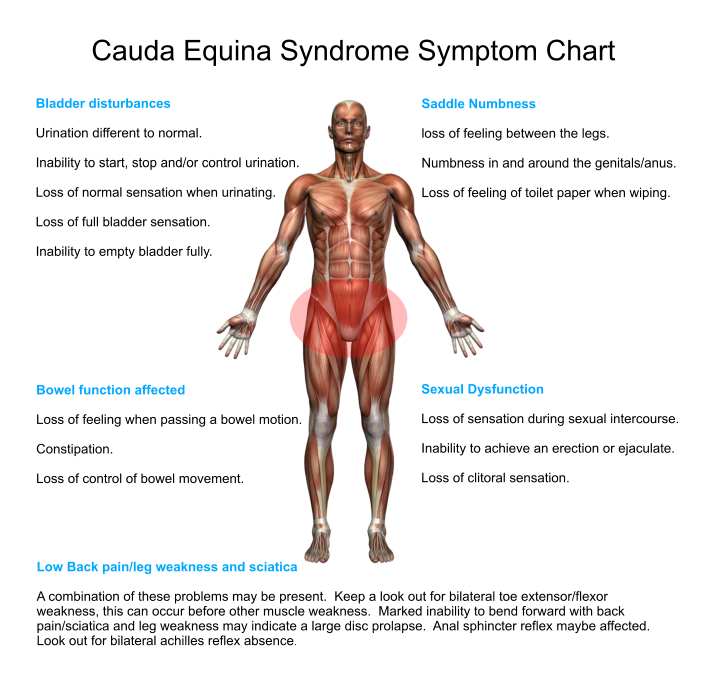symptoms-chart-cauda-equina