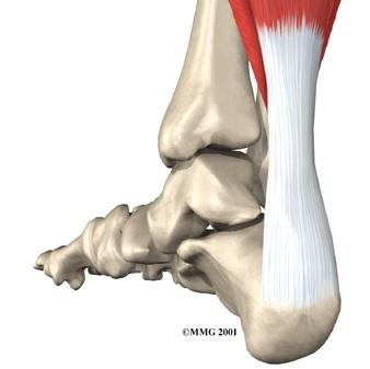 achilles-tendon