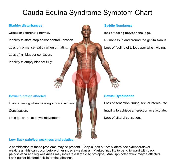 symptoms-chart-cauda-equina