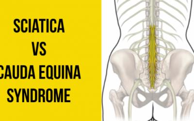 Is it a Lumbar Radiculopathy or a Cauda Equina Syndrome?