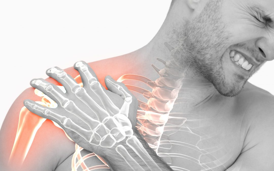 Impinging on the impingement theory